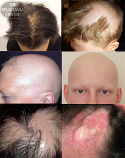 Other Hair Loss Conditions